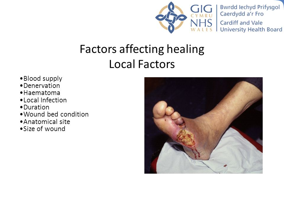 Factors affecting healing Local Factors Blood supply Denervation Haematoma Local Infection Duration Wound bed condition Anatomical site Size of wound