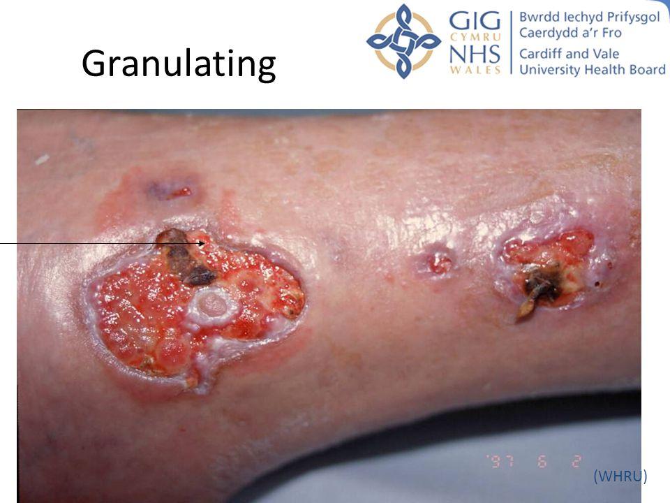 Granulating (WHRU)