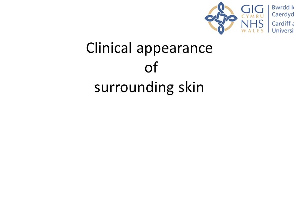 Clinical appearance of surrounding skin