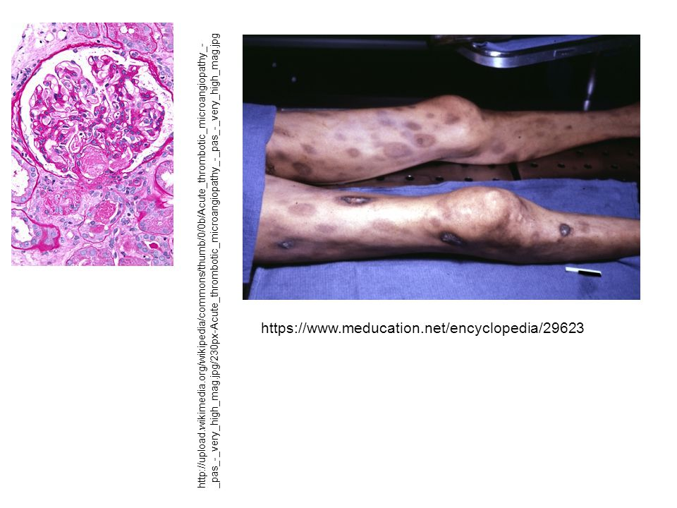 https://www.meducation.net/encyclopedia/29623 http://upload.wikimedia.org/wikipedia/commons/thumb/0/0b/Acute_thrombotic_microangiopathy_- _pas_-_very_high_mag.jpg/230px-Acute_thrombotic_microangiopathy_-_pas_-_very_high_mag.jpg