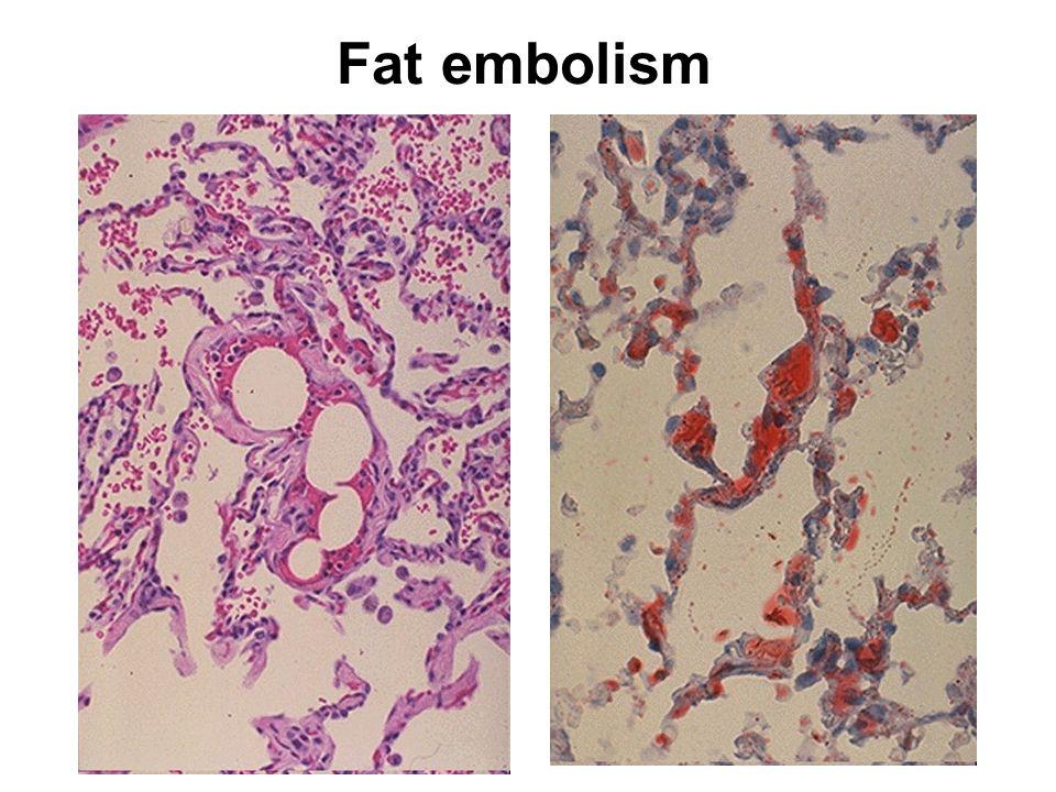 Fat embolism