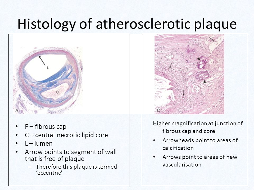 Histology of atherosclerotic plaque F – fibrous cap C – central necrotic lipid core L – lumen Arrow points to segment of wall that is free of plaque – Therefore this plaque is termed 'eccentric' Higher magnification at junction of fibrous cap and core Arrowheads point to areas of calcification Arrows point to areas of new vascularisation