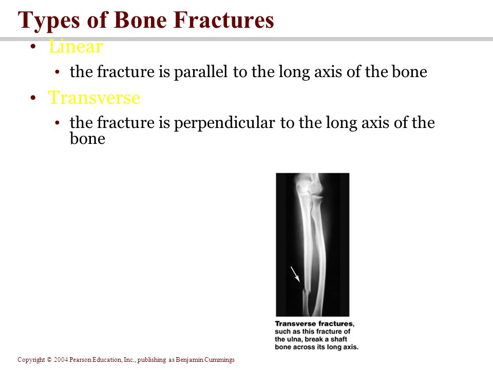 Copyright © 2004 Pearson Education, Inc., publishing as Benjamin Cummings Types of Bone Fractures Linear the fracture is parallel to the long axis of the bone Transverse the fracture is perpendicular to the long axis of the bone