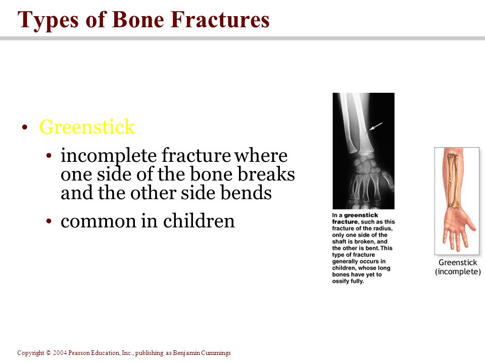 Copyright © 2004 Pearson Education, Inc., publishing as Benjamin Cummings Types of Bone Fractures Greenstick incomplete fracture where one side of the bone breaks and the other side bends common in children