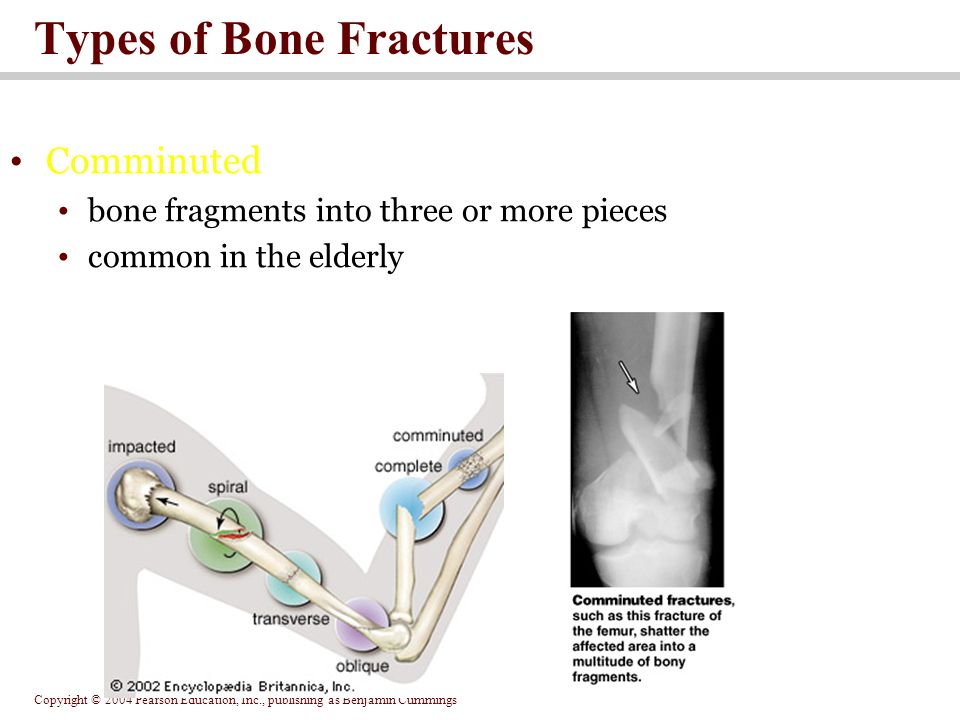 Copyright © 2004 Pearson Education, Inc., publishing as Benjamin Cummings Types of Bone Fractures Comminuted bone fragments into three or more pieces common in the elderly
