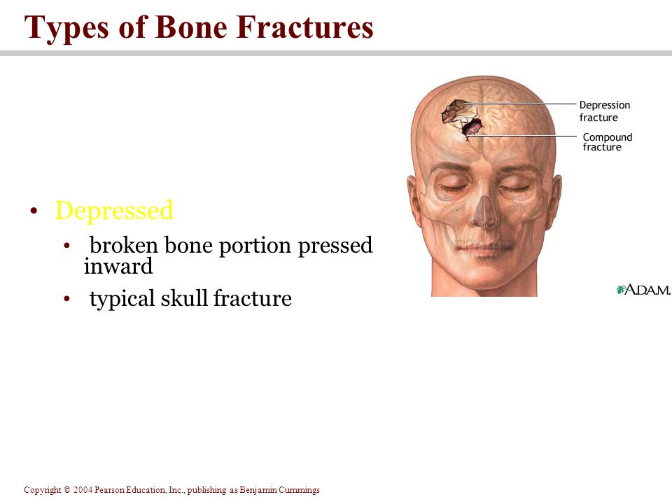 Copyright © 2004 Pearson Education, Inc., publishing as Benjamin Cummings Types of Bone Fractures Depressed broken bone portion pressed inward typical skull fracture