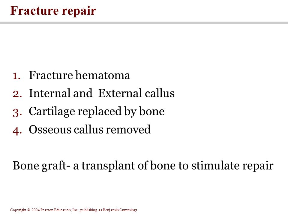 Copyright © 2004 Pearson Education, Inc., publishing as Benjamin Cummings 1.Fracture hematoma 2.Internal and External callus 3.Cartilage replaced by bone 4.Osseous callus removed Bone graft- a transplant of bone to stimulate repair Fracture repair