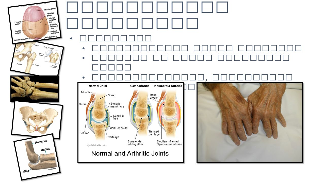 Homeostatic Imbalance Arthritis Inflammatory joint disorder Changes in joint structure occur Osteoarthritis, rheumatoid arthritis, gouty arthritis