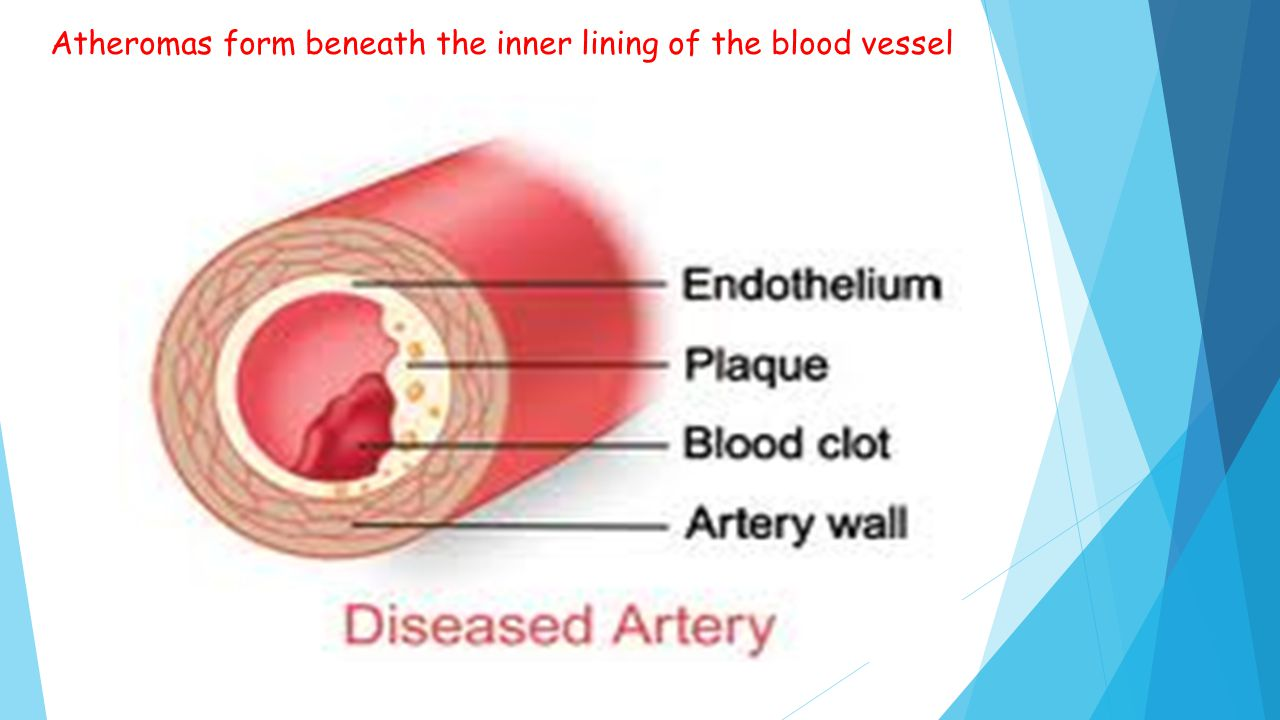 Atheromas form beneath the inner lining of the blood vessel