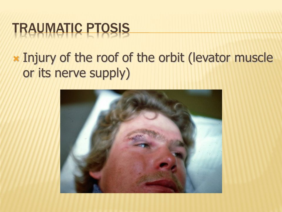  Injury of the roof of the orbit (levator muscle or its nerve supply)