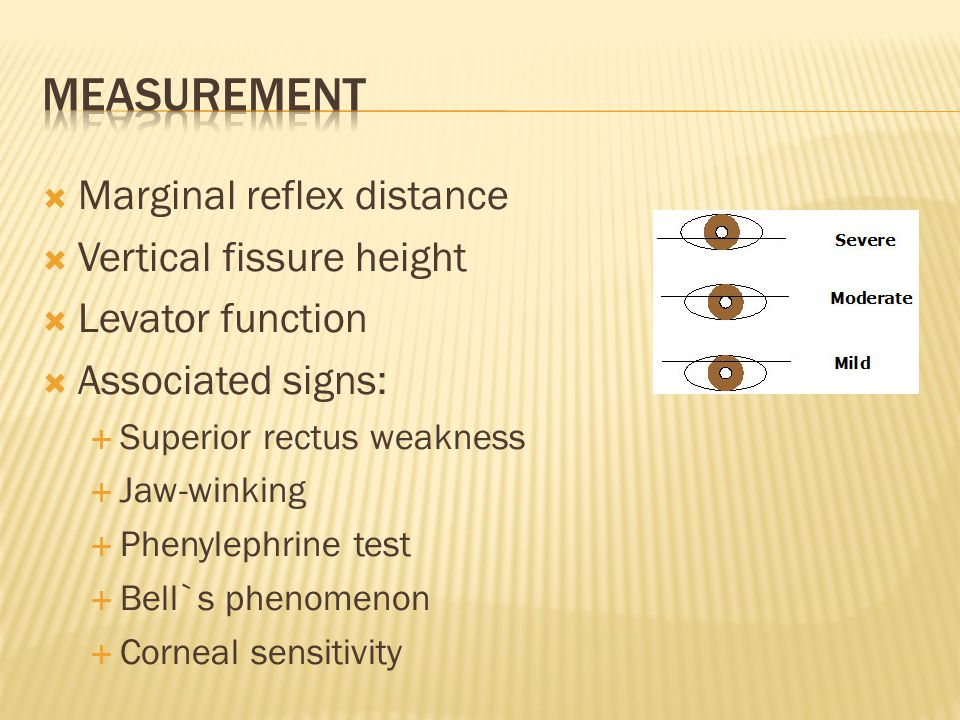  Marginal reflex distance  Vertical fissure height  Levator function  Associated signs:  Superior rectus weakness  Jaw-winking  Phenylephrine test  Bell`s phenomenon  Corneal sensitivity