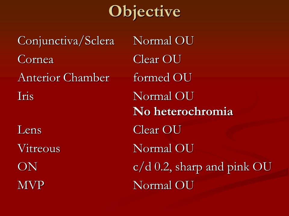 Objective Conjunctiva/ScleraNormal OU CorneaClear OU Anterior Chamberformed OU IrisNormal OU No heterochromia LensClear OU VitreousNormal OU ONc/d 0.2, sharp and pink OU MVPNormal OU