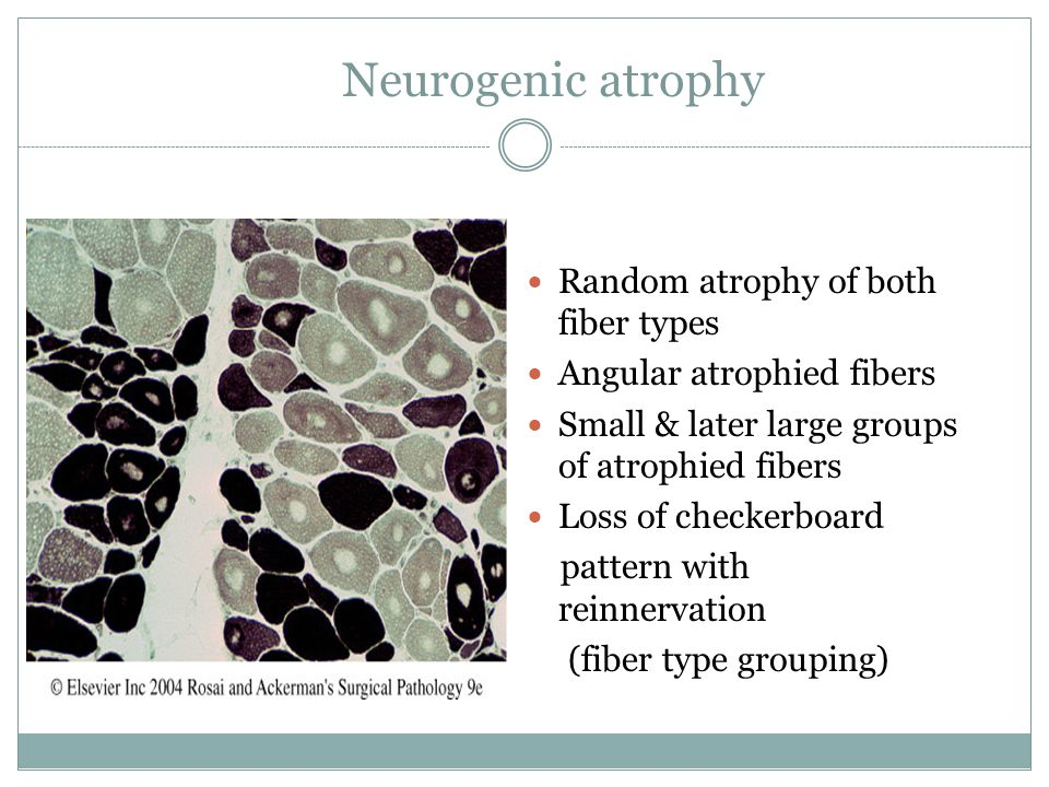 Neurogenic atrophy Random atrophy of both fiber types Angular atrophied fibers Small & later large groups of atrophied fibers Loss of checkerboard pat