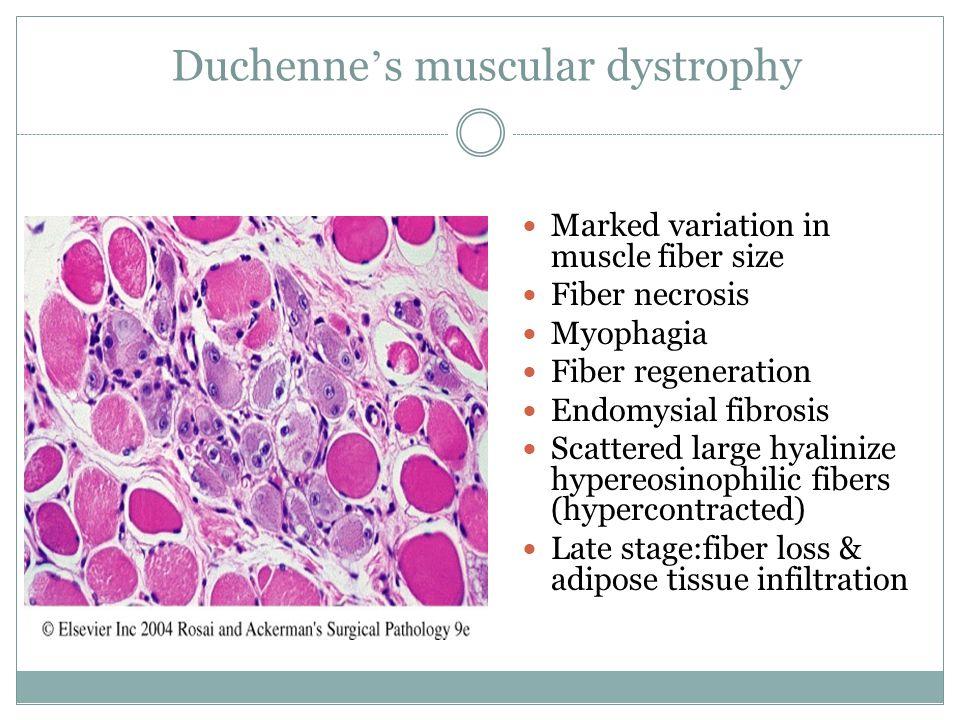 Duchenne ' s muscular dystrophy Marked variation in muscle fiber size Fiber necrosis Myophagia Fiber regeneration Endomysial fibrosis Scattered large