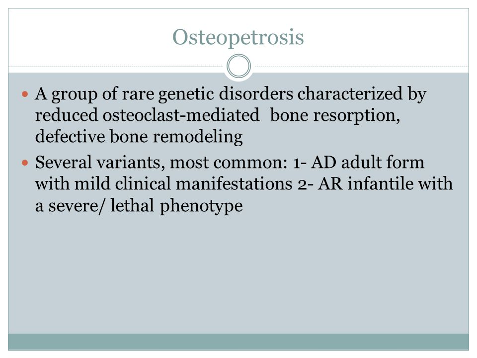 A group of rare genetic disorders characterized by reduced osteoclast-mediated bone resorption, defective bone remodeling Several variants, most commo