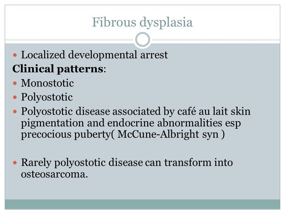 Fibrous dysplasia Localized developmental arrest Clinical patterns: Monostotic Polyostotic Polyostotic disease associated by café au lait skin pigment