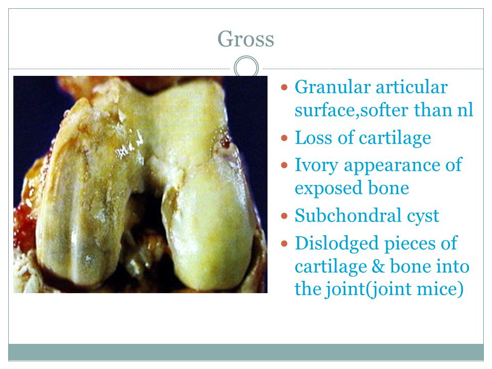 Gross Granular articular surface,softer than nl Loss of cartilage Ivory appearance of exposed bone Subchondral cyst Dislodged pieces of cartilage & bo