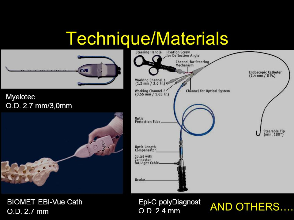 Technique/Materials Epi-C polyDiagnost O.D. 2.4 mm BIOMET EBI-Vue Cath O.D. 2.7 mm Myelotec O.D. 2.7 mm/3,0mm AND OTHERS….