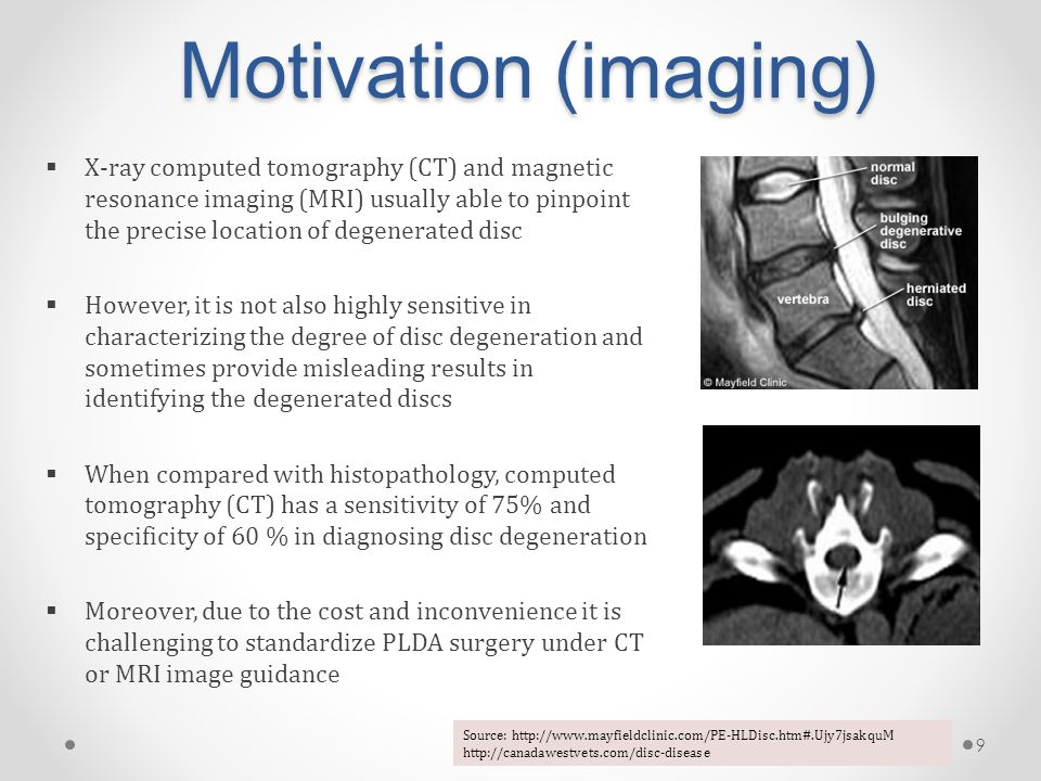 Motivation (imaging)  X-ray computed tomography (CT) and magnetic resonance imaging (MRI) usually able to pinpoint the precise location of degenerated disc  However, it is not also highly sensitive in characterizing the degree of disc degeneration and sometimes provide misleading results in identifying the degenerated discs  When compared with histopathology, computed tomography (CT) has a sensitivity of 75% and specificity of 60 % in diagnosing disc degeneration  Moreover, due to the cost and inconvenience it is challenging to standardize PLDA surgery under CT or MRI image guidance 9 Source: http://www.mayfieldclinic.com/PE-HLDisc.htm#.Ujy7jsakquM http://canadawestvets.com/disc-disease