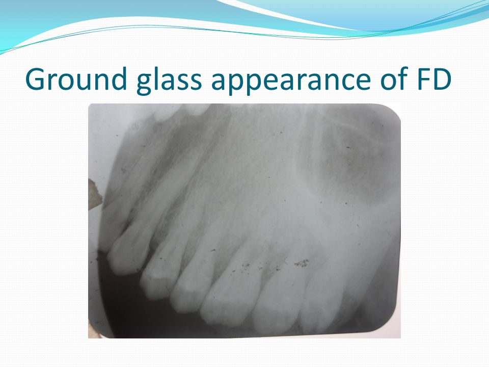 Ground glass appearance of FD