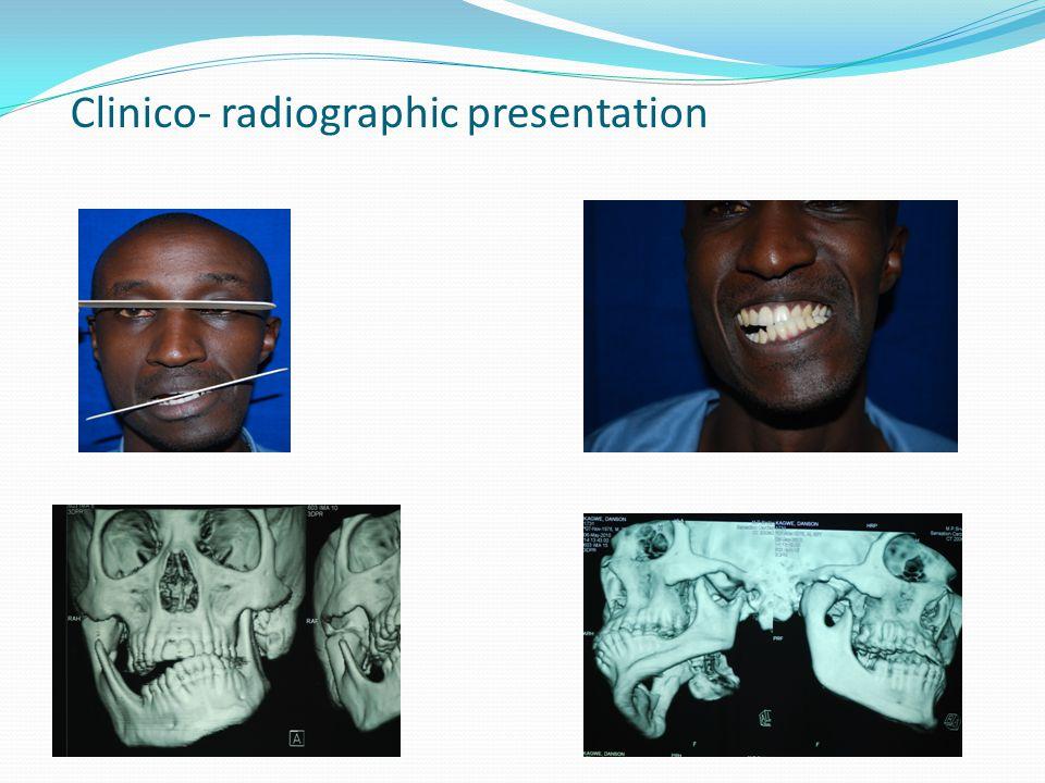 Clinico- radiographic presentation