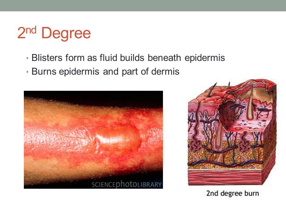 2 nd Degree Blisters form as fluid builds beneath epidermis Burns epidermis and part of dermis