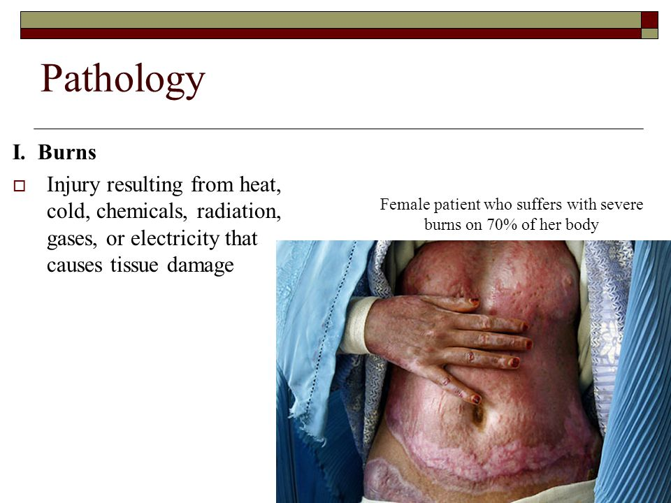 Pathology I. Burns  Injury resulting from heat, cold, chemicals, radiation, gases, or electricity that causes tissue damage Female patient who suffer