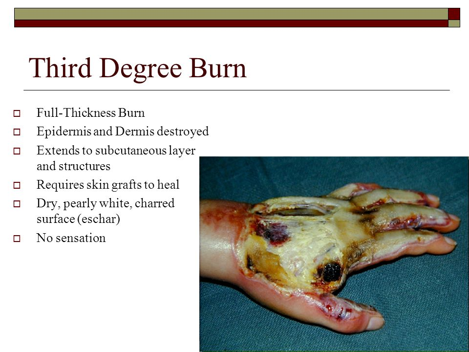 Third Degree Burn  Full-Thickness Burn  Epidermis and Dermis destroyed  Extends to subcutaneous layer and structures  Requires skin grafts to heal