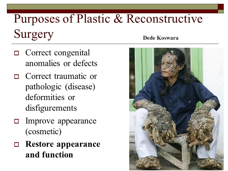 Purposes of Plastic & Reconstructive Surgery  Correct congenital anomalies or defects  Correct traumatic or pathologic (disease) deformities or disf