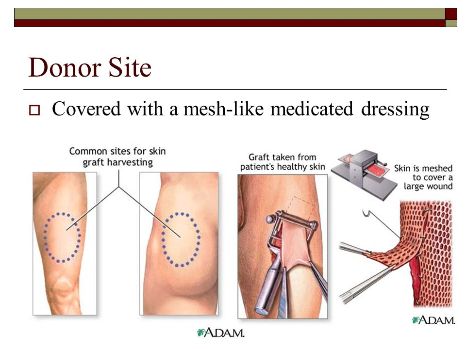 Donor Site  Covered with a mesh-like medicated dressing