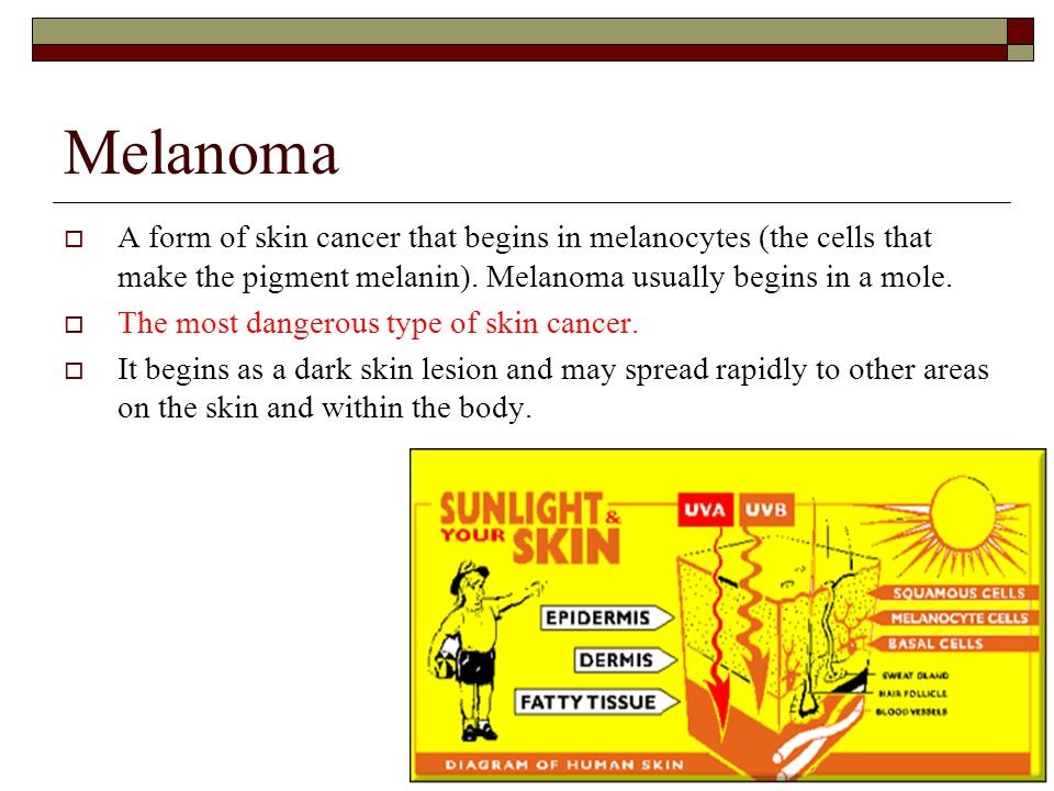Melanoma  A form of skin cancer that begins in melanocytes (the cells that make the pigment melanin). Melanoma usually begins in a mole.  The most d