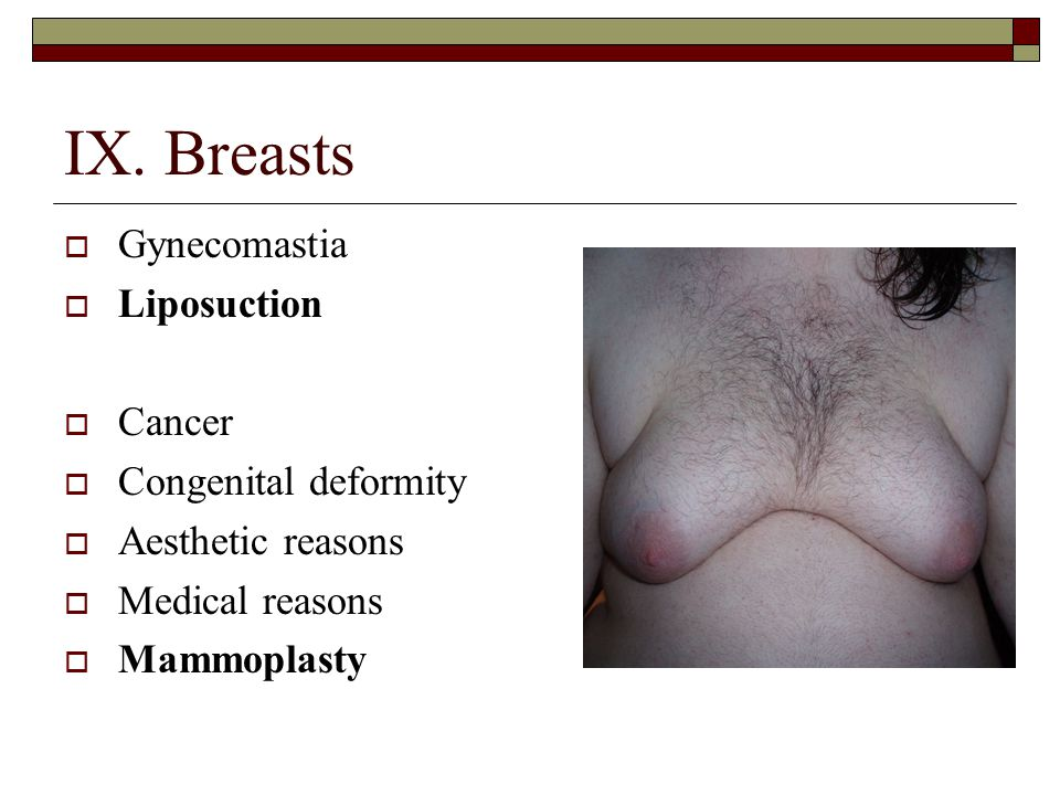 IX. Breasts  Gynecomastia  Liposuction  Cancer  Congenital deformity  Aesthetic reasons  Medical reasons  Mammoplasty