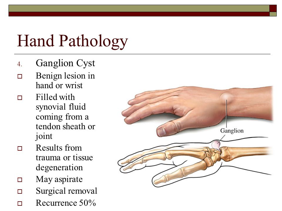 Hand Pathology 4. Ganglion Cyst  Benign lesion in hand or wrist  Filled with synovial fluid coming from a tendon sheath or joint  Results from trau