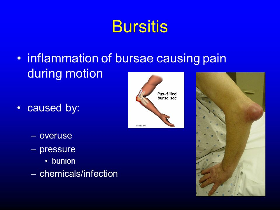 Bursitis inflammation of bursae causing pain during motion caused by: –overuse –pressure bunion –chemicals/infection