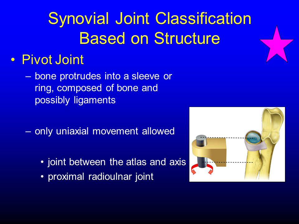 Synovial Joint Classification Based on Structure Pivot Joint –bone protrudes into a sleeve or ring, composed of bone and possibly ligaments –only unia