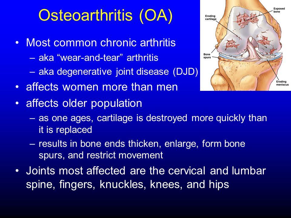 "Osteoarthritis (OA) Most common chronic arthritis –aka ""wear-and-tear"" arthritis –aka degenerative joint disease (DJD) affects women more than men aff"