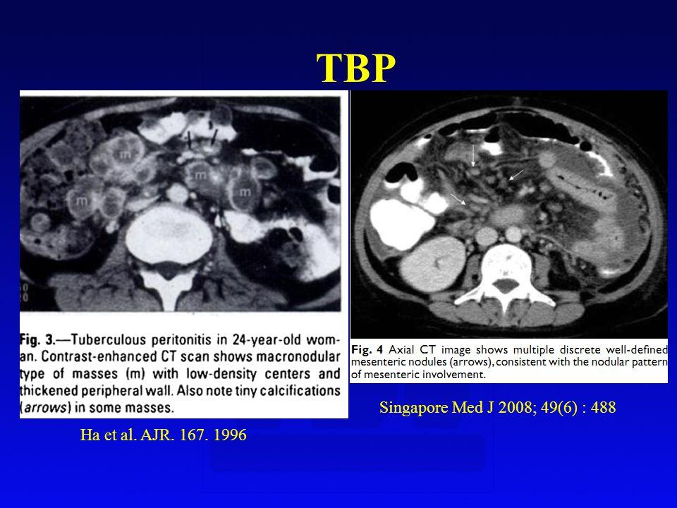 Ha et al. AJR. 167. 1996 TBP Singapore Med J 2008; 49(6) : 488