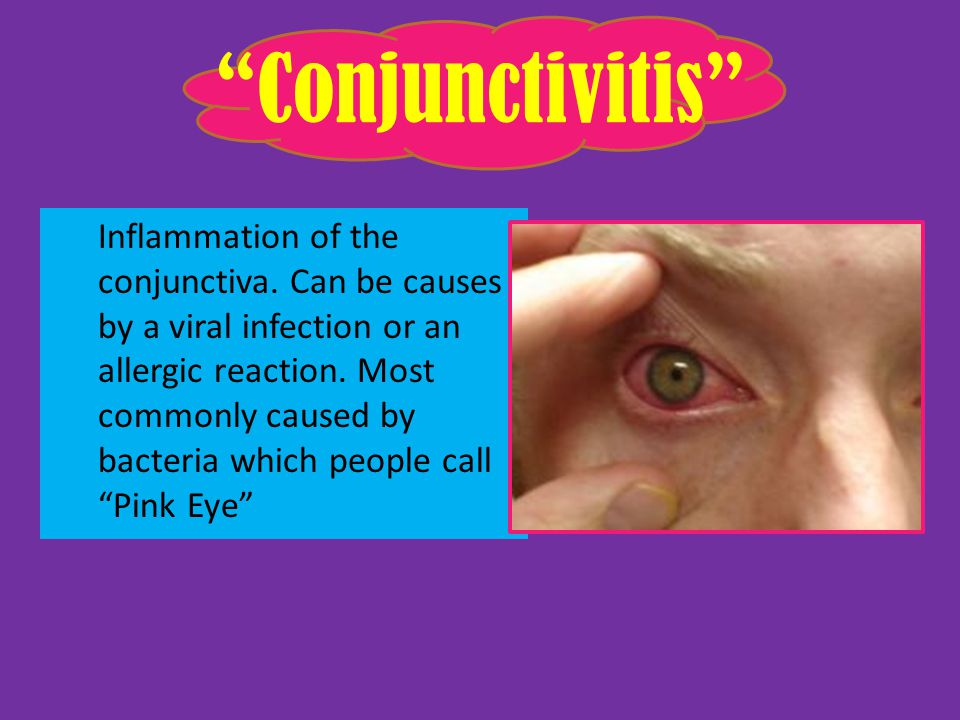 Objectives – Explain different diseases associated with the eye.