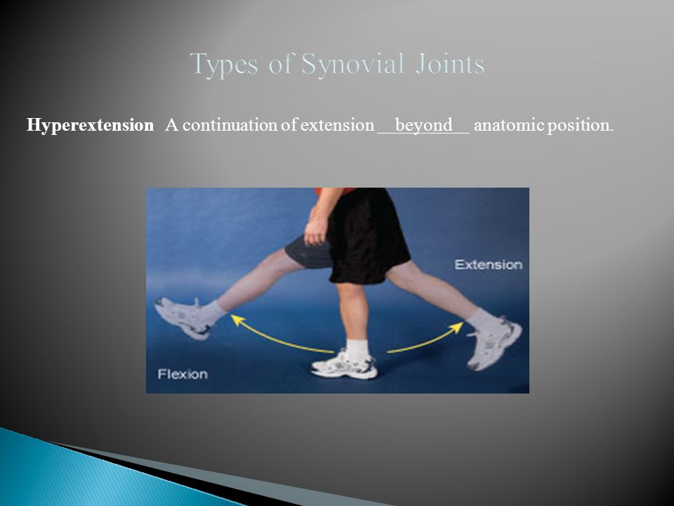 Hyperextension A continuation of extension beyond anatomic position.