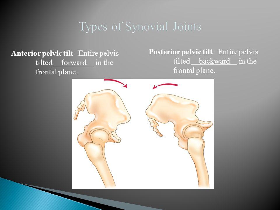 Anterior pelvic tilt Entire pelvis tilted forward in the frontal plane. Posterior pelvic tilt Entire pelvis tilted backward in the frontal plane.