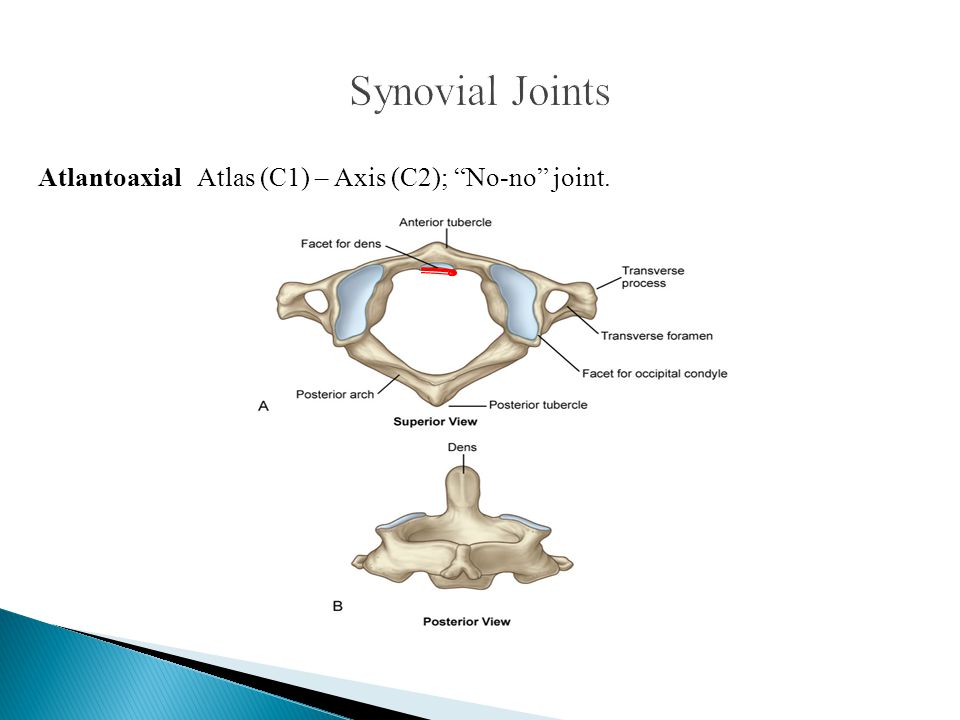 """Atlantoaxial Atlas (C1) – Axis (C2); """"No-no"""" joint."""