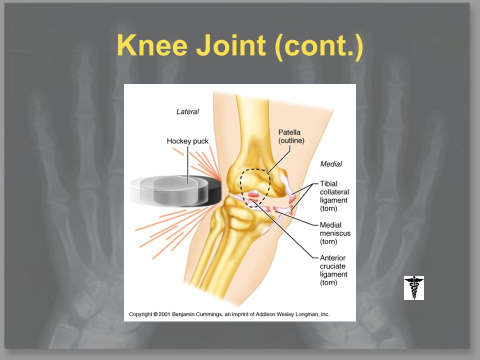Knee Joint (cont.)