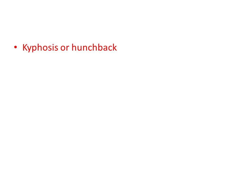 Kyphosis or hunchback