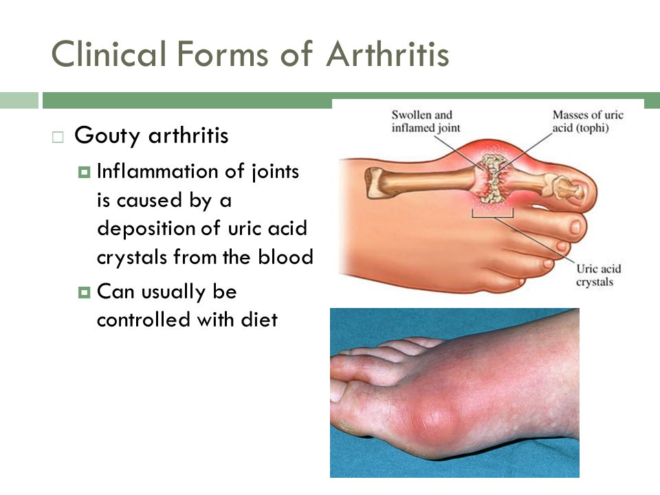 Clinical Forms of Arthritis  Gouty arthritis  Inflammation of joints is caused by a deposition of uric acid crystals from the blood  Can usually be