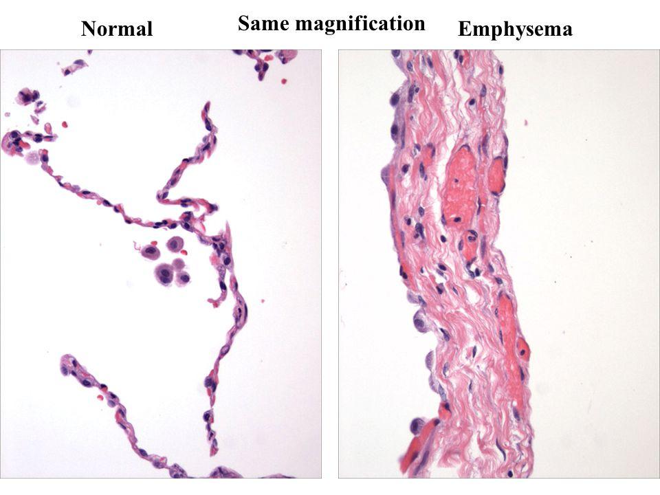 NormalEmphysema Same magnification