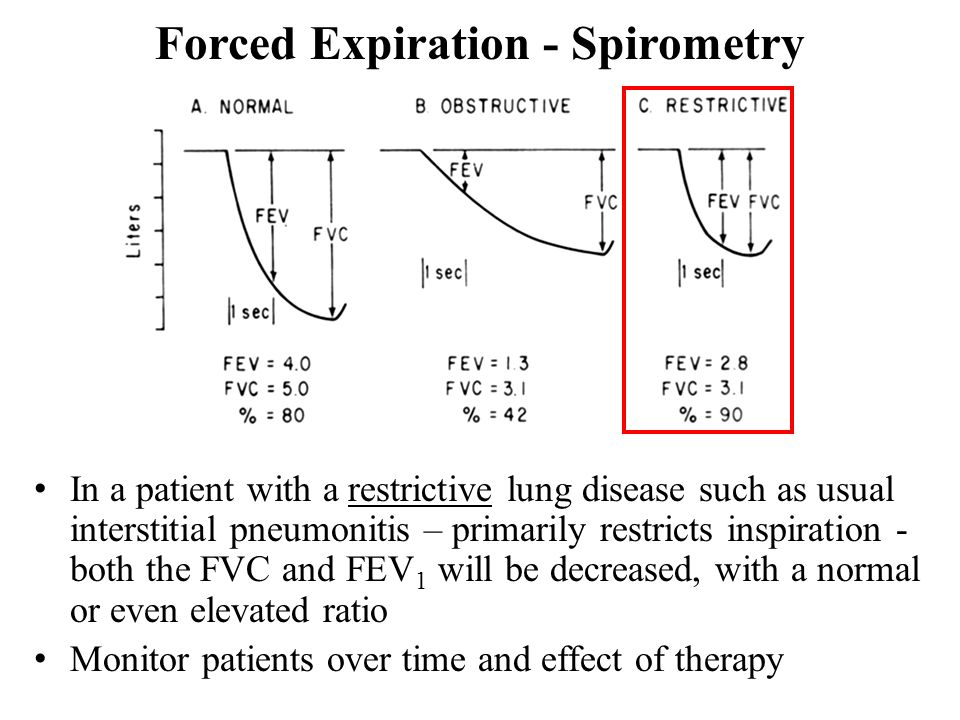 Forced Expiration - Spirometry In a patient with a restrictive lung disease such as usual interstitial pneumonitis – primarily restricts inspiration - both the FVC and FEV 1 will be decreased, with a normal or even elevated ratio Monitor patients over time and effect of therapy