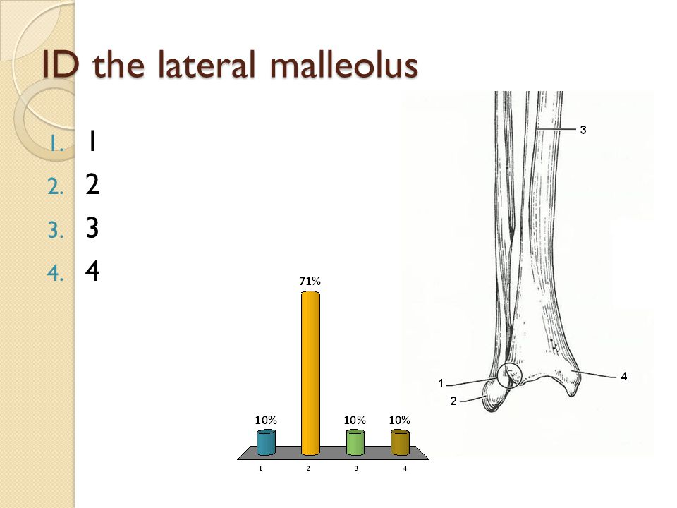 ID the lateral malleolus 1. 1 2. 2 3. 3 4. 4