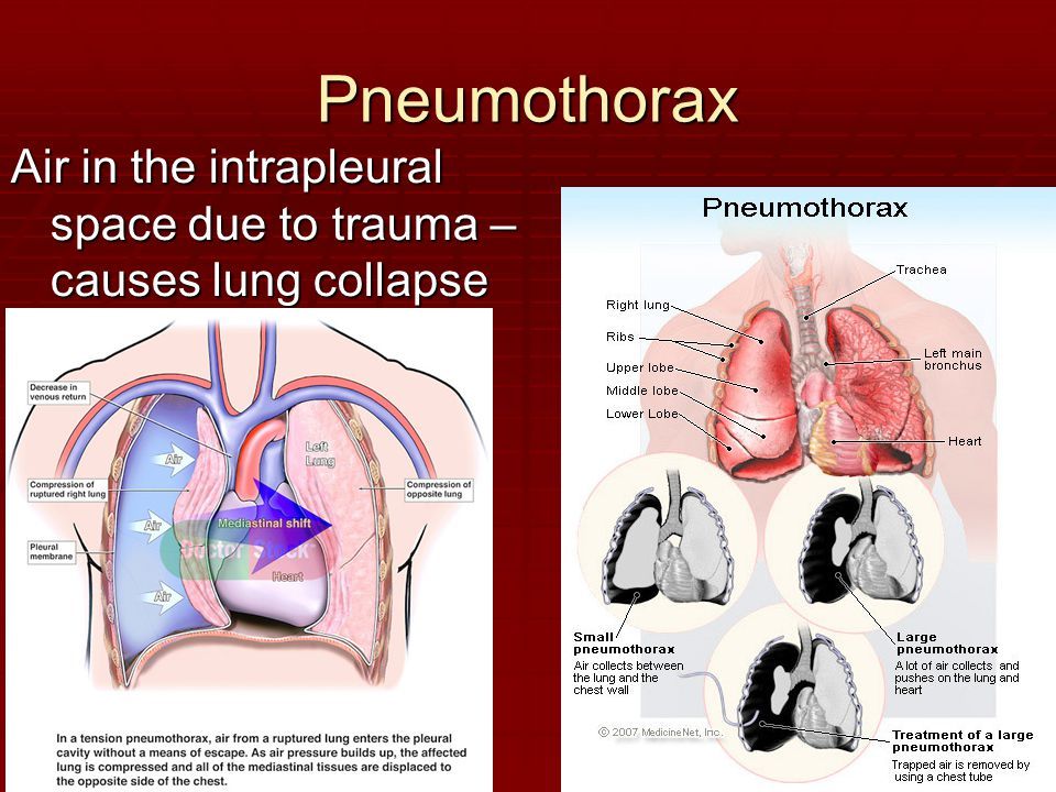 Pneumothorax Air in the intrapleural space due to trauma – causes lung collapse