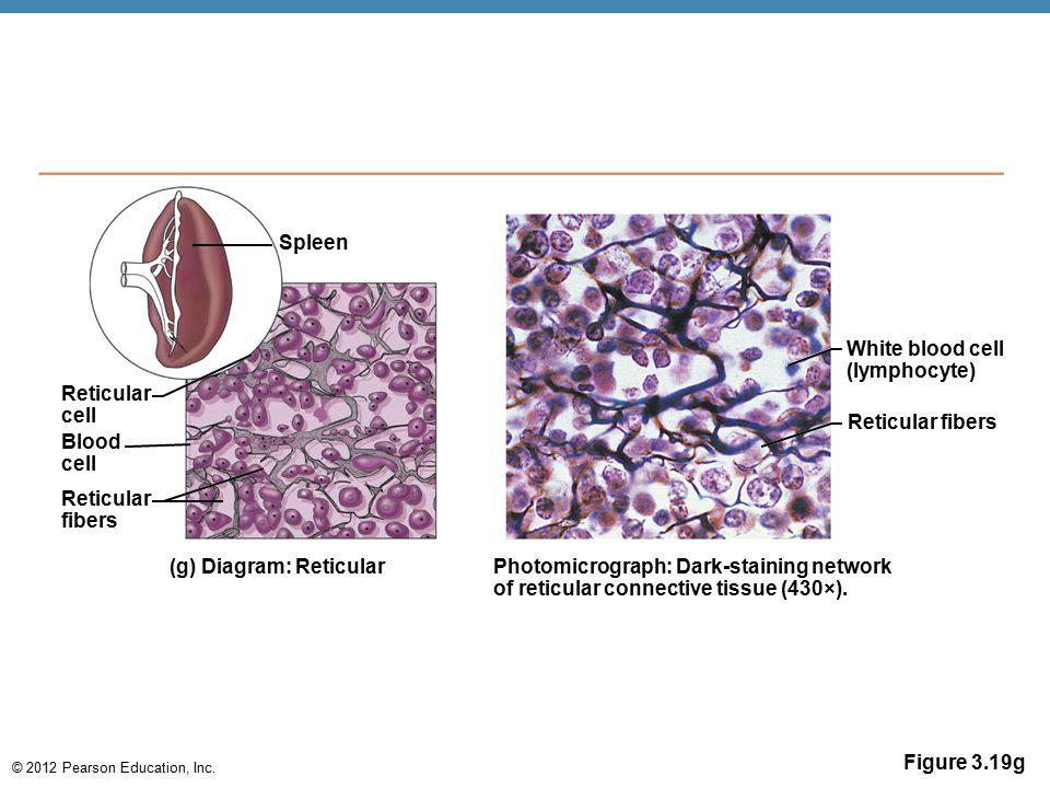 © 2012 Pearson Education, Inc. Figure 3.19g Spleen Reticular cell Reticular fibers Blood cell (g) Diagram: Reticular Photomicrograph: Dark-staining ne