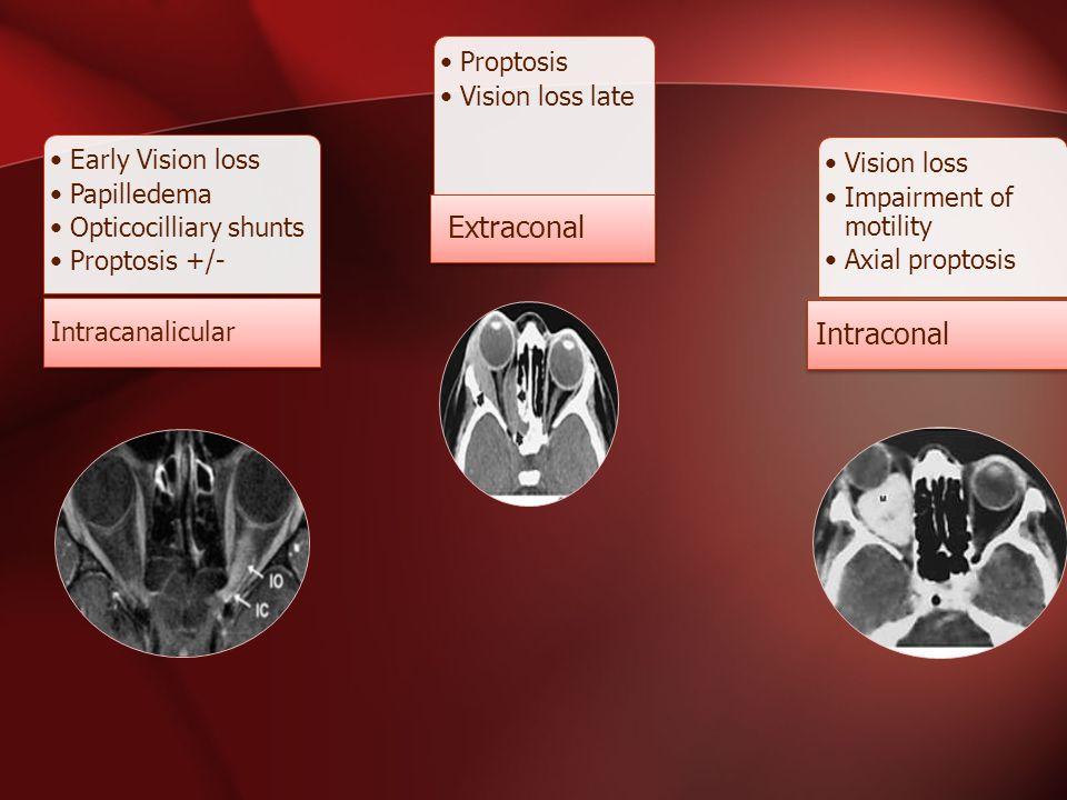 Early Vision loss Papilledema Opticocilliary shunts Proptosis +/- Intracanalicular Proptosis Vision loss late Extraconal Vision loss Impairment of mot